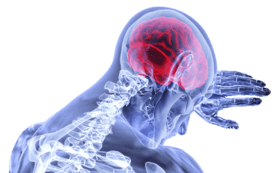 Get Smart About Strokes
